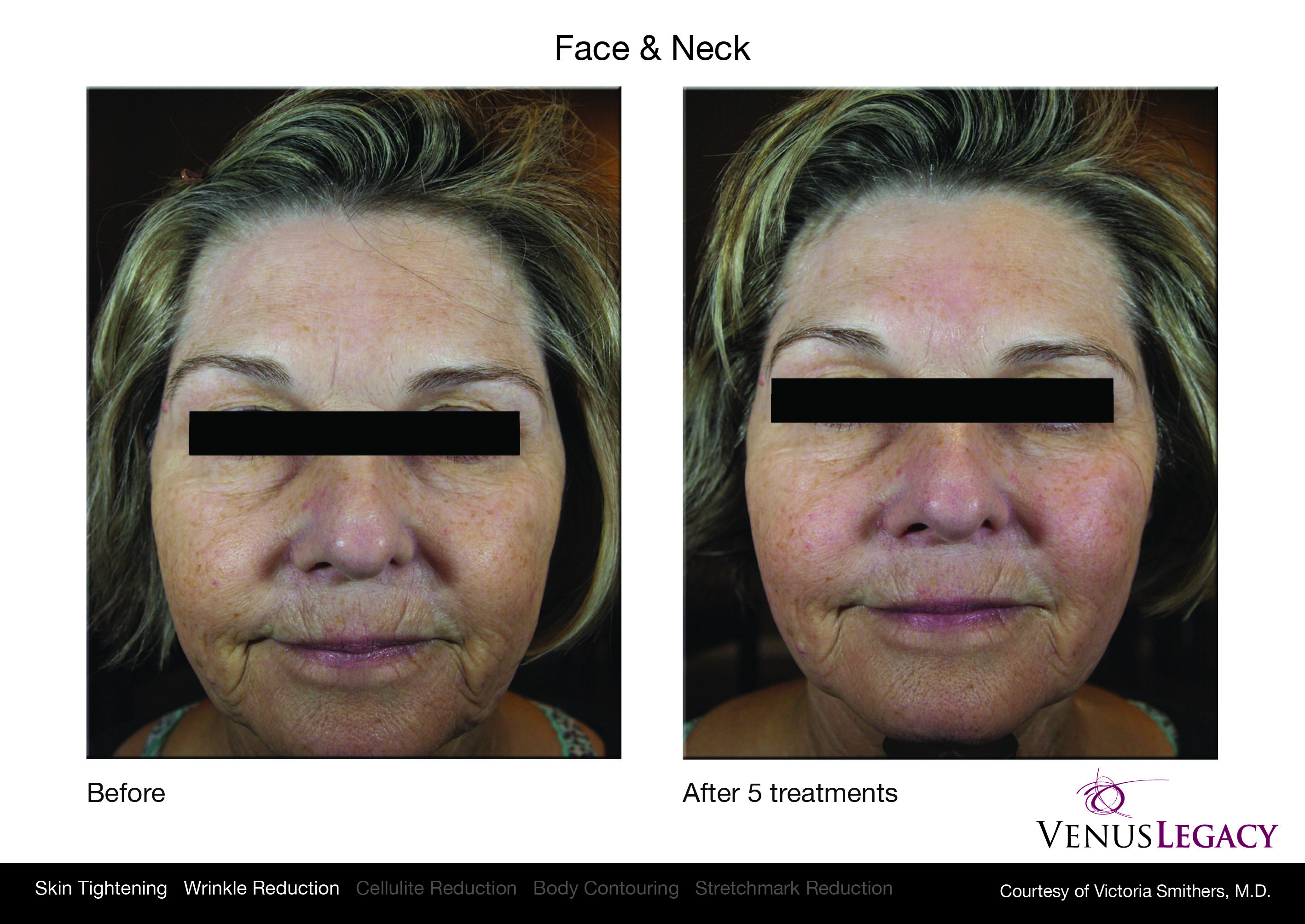 Wrinkle Reduction in Edmonton