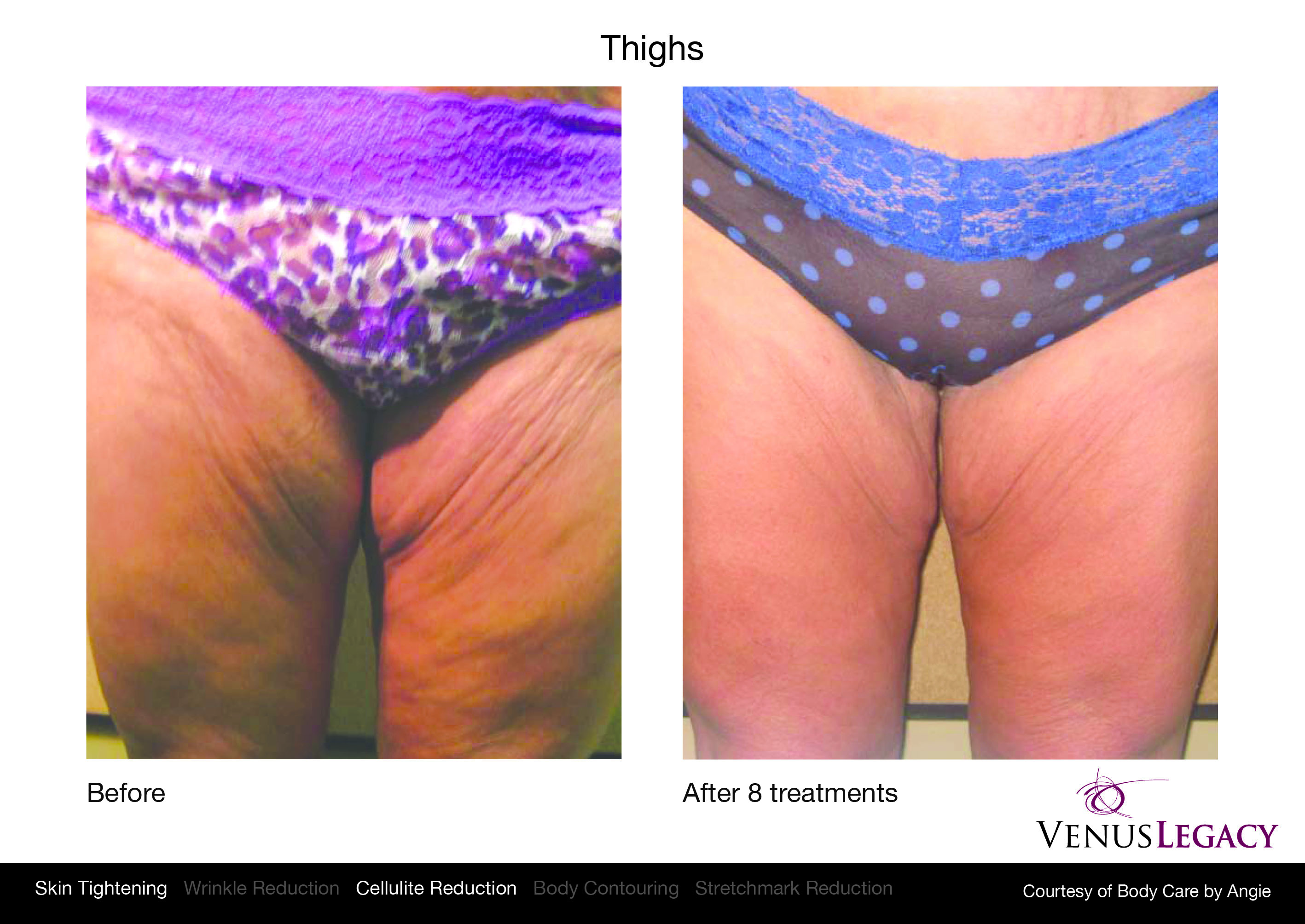 Cellulite Reduction in Edmonton