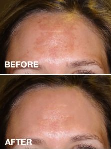 Chemical Peels in Edmonton