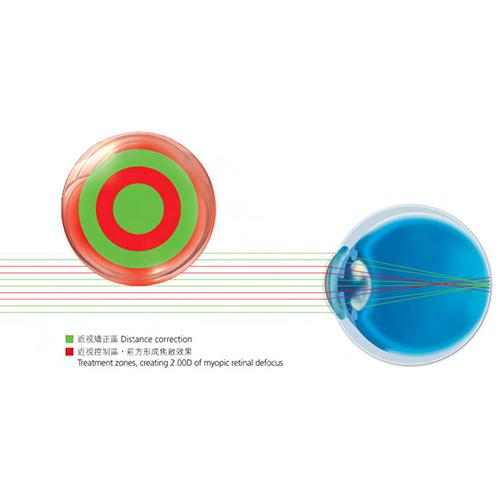 Myopia Control- MiSight