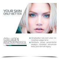 Collagen Induction Protocol  - Dermalene Skin, Hair & Nails