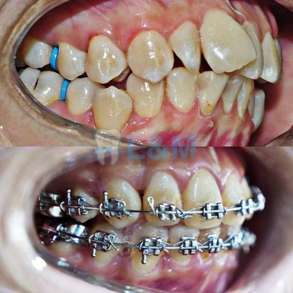Dental Braces - KLINIK PERGIGIAN L&M