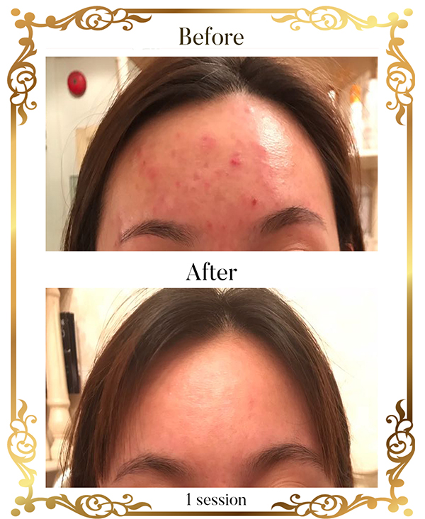 best-spas-in-orchard-before-after