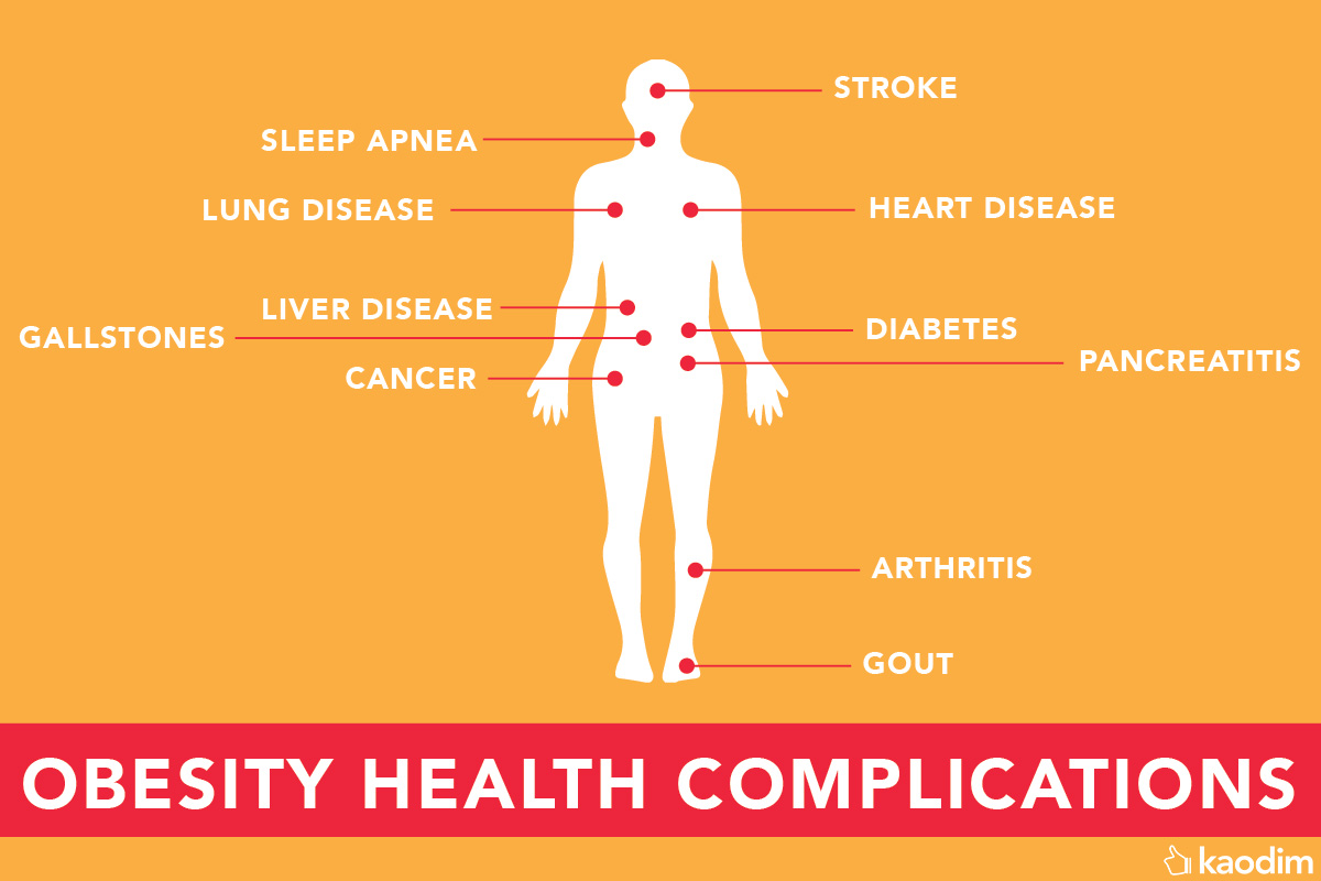 obesity health symptoms infographic malaysia
