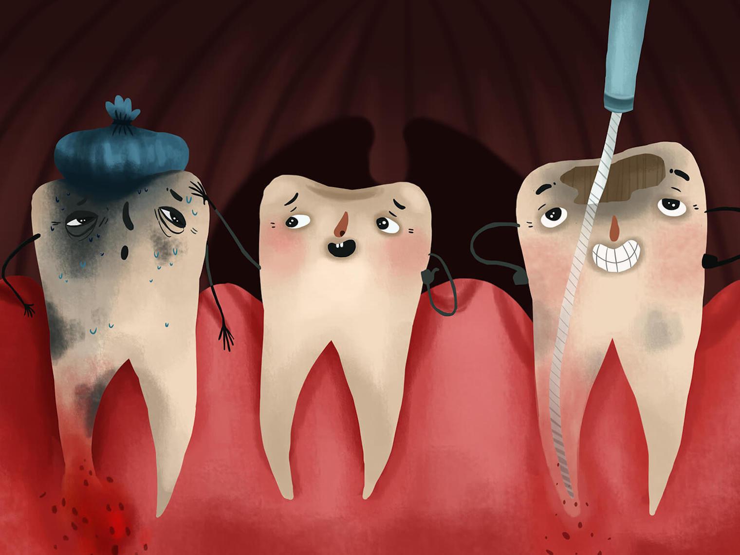 根管治療的目標:恢復牙周組織健康;加強根管內清潔,降低日後復發機率;重建牙齒。根管後若無牙套或齒雕保護,五年牙裂機率高達80%。