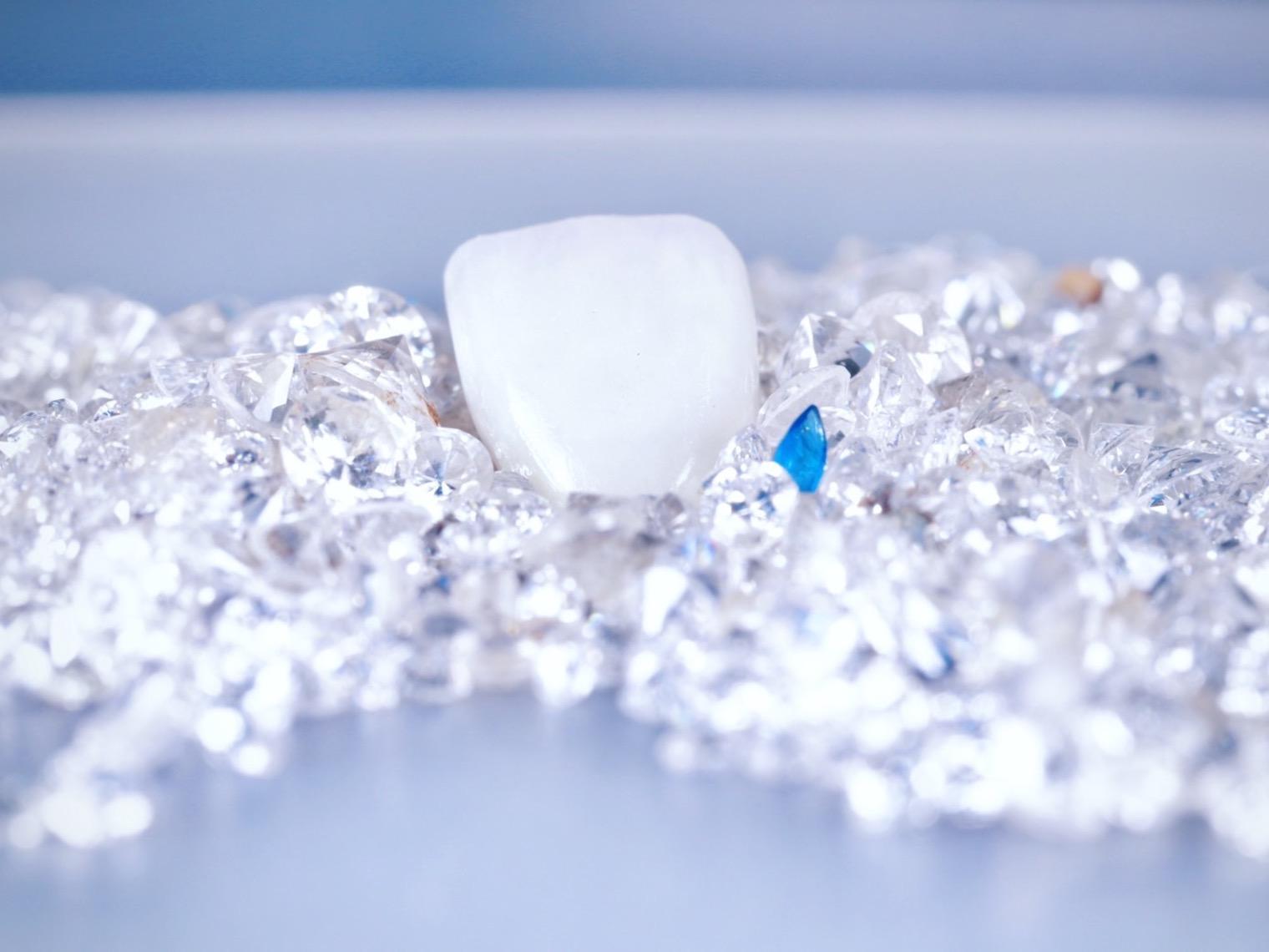若將牙齒比喻成戴在手上的鑽戒也不為過,而且牙齒長在臉上,無論是吃飯、講話、談戀愛都會用到它,簡直比鑽戒還要實用呢!需要做假牙的人,不外乎是蛀牙導致大量牙齒損耗、根管治療後套上牙冠保護、植牙、為了調整牙齒微笑曲線的美觀等等。