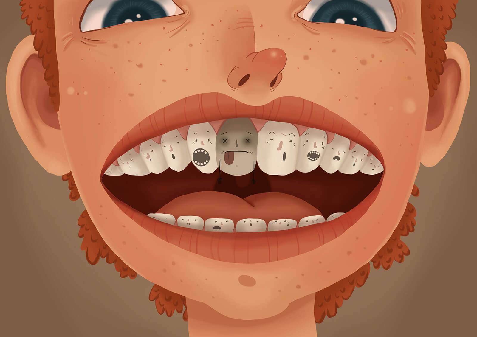 根管治療為什麼跟發燒、鼻竇炎有關啊? 這是因為鼻竇跟口腔是鄰居,需要根管治療是因為牙齒的內部牙髓受污染、被細菌侵襲所導致,若口腔的感染問題往上延伸,就很有可能影響到鼻竇,