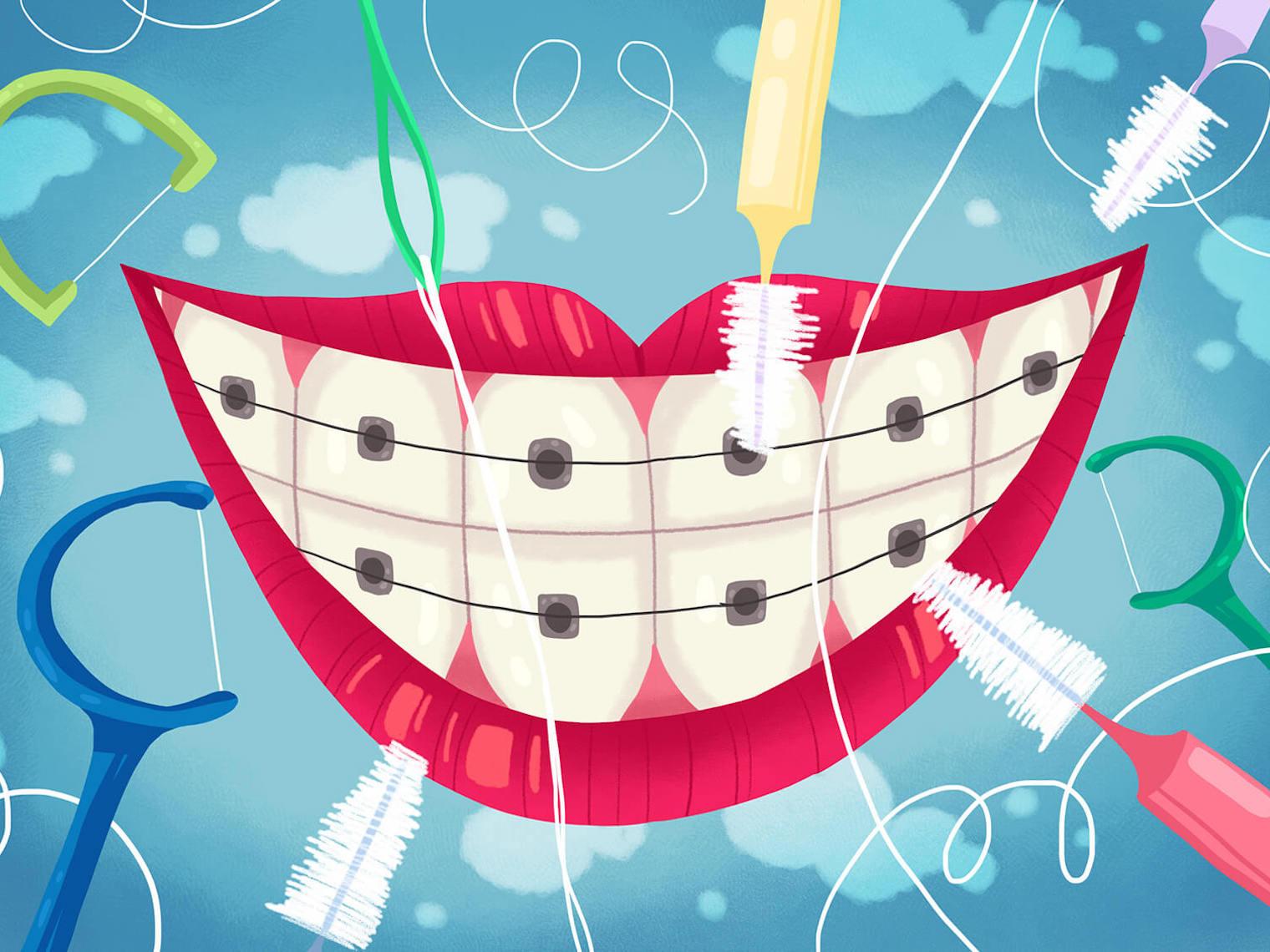 牙線用來清除牙刷接觸不到的牙縫間牙垢。使用牙刷潔牙時,很難深入牙縫及牙周囊袋,所以該部位殘留和堆積牙垢、牙菌斑,若時間久了不理它,會誘發齲齒、牙周病等口腔疾病。
