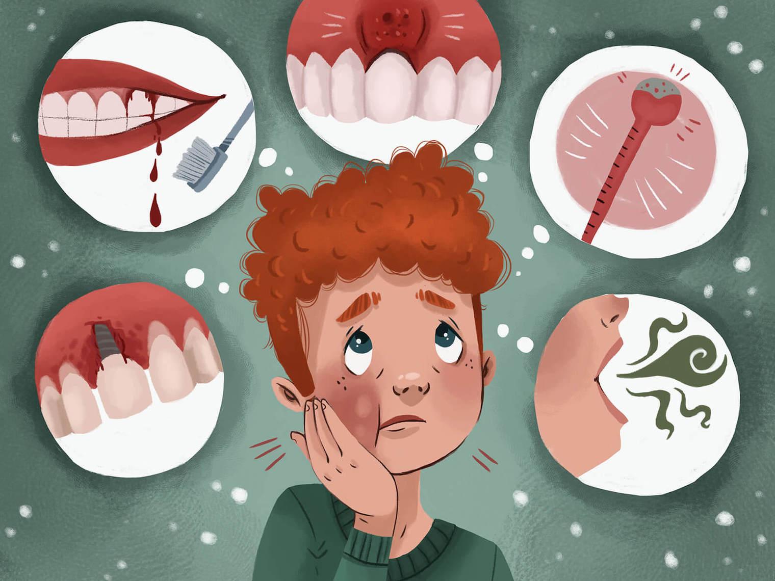 隨著更多牙菌斑累積,漸漸形成厚實的牙結石,將牙齦與牙齒中間距離撐開,形成容易藏污納垢的空間—牙周囊袋。若不好好處理,就會加速牙周病的病情發展。