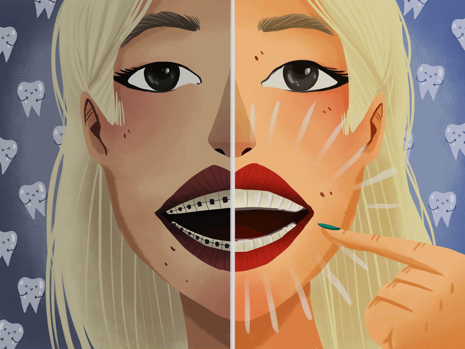 影響發音、難清潔、咬合問題、為了美觀、暴牙、牙縫過大、錯咬、深咬或暴牙、戽斗、齒列擁擠;或搭配牙周病、植牙與全口重建療程者。都會是適合進行牙齒矯正的對象。