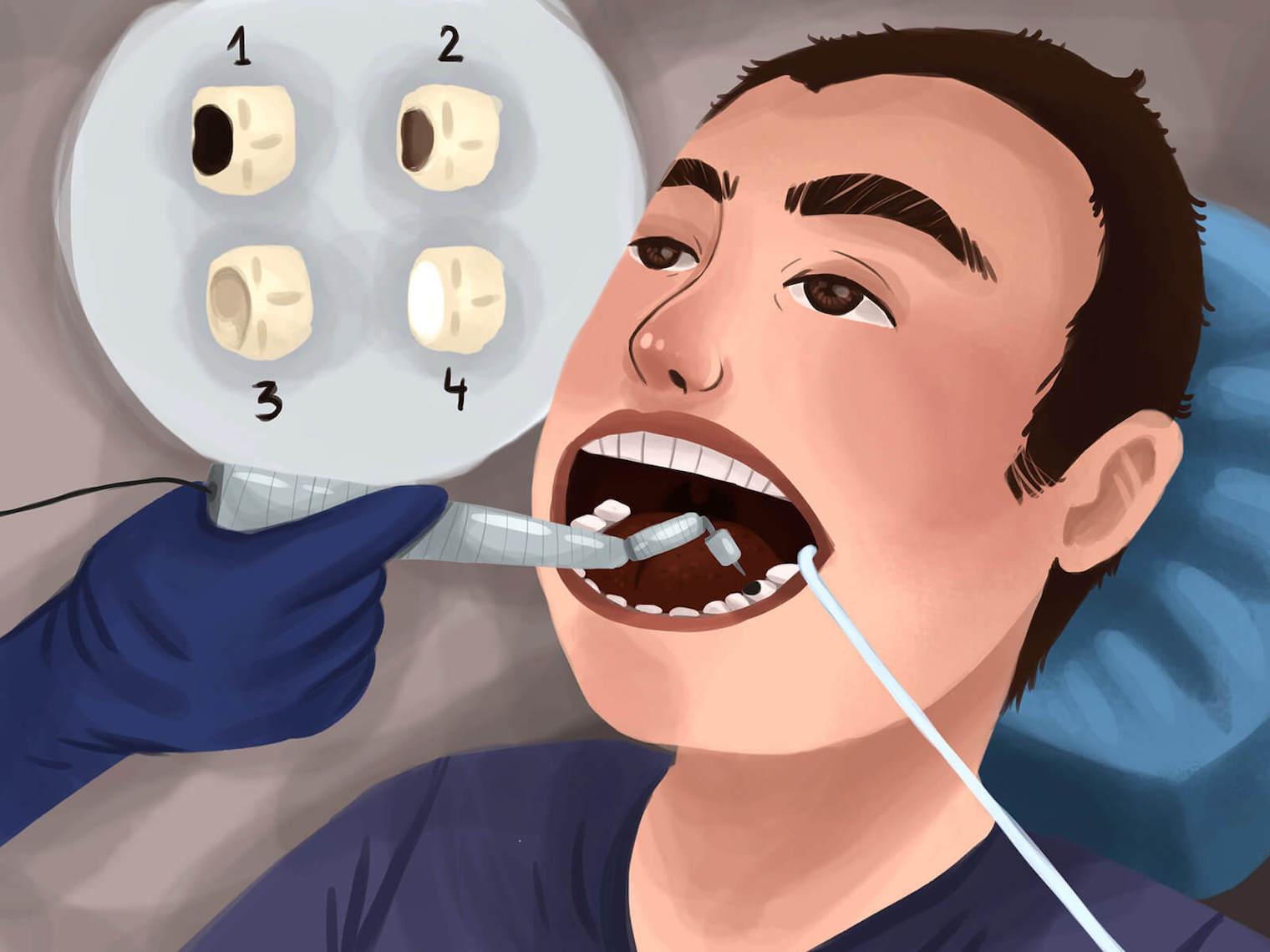 牙齒結構、唾液量、牙齒排列是影響蛀牙的關鍵因素。在牙齒胚胎時期就已經決定,有些牙齒在胚胎時期,養分攝取充足琺瑯質鈣化得很好,表面光滑好清潔,就不容易蛀牙