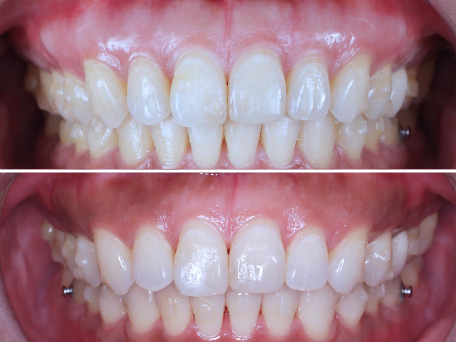 原本以為牙齦美白美容需要透過討皮痛的手術進行,經醫師評估後可使用「水雷射」進行牙齦美白的療程,免去牙周手術的過程,不但讓整個過程更無痛,後續傷口也癒合得很快呢!