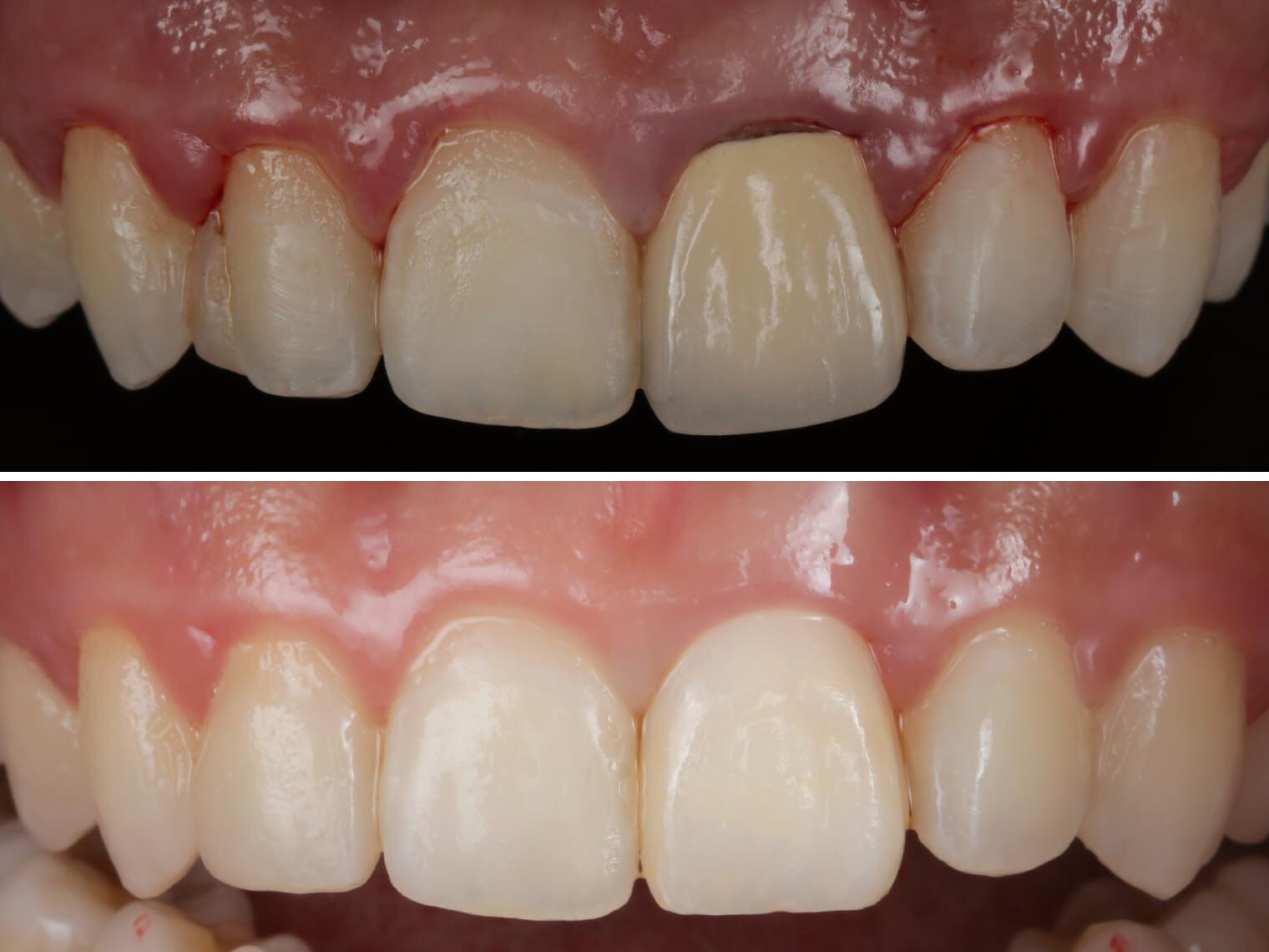 拍照時老舊的門牙假牙、崩壞的側門牙填補物都會很顯眼有事。醫師首先將側門牙舊的填補物移除,再以美學樹脂修復型態,門牙則是換上臨時假牙,待牙齦恢復健康後黏上正式的全瓷冠,就會很美了。