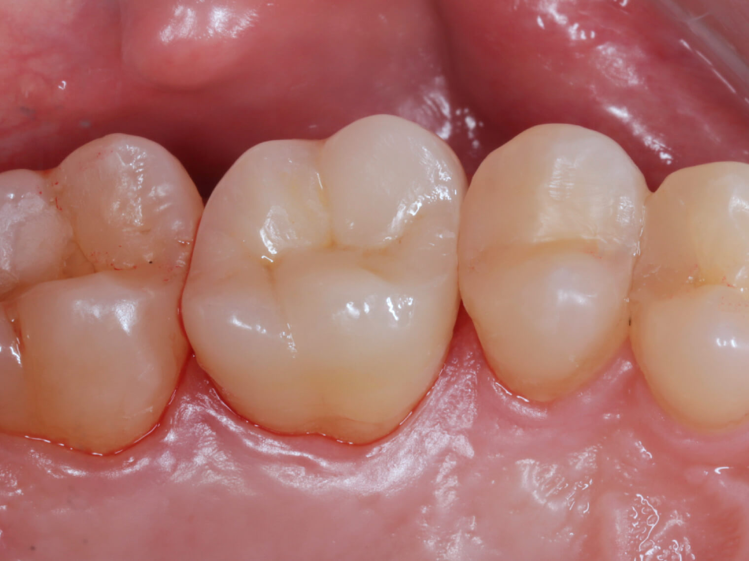 大範圍的蛀牙一定沒救了嗎?別急著放棄任何一絲的希望,經由醫師的診斷評估,透過「活髓保存術」,我們得以把牙齒神經留下,避免抽神經的命運。