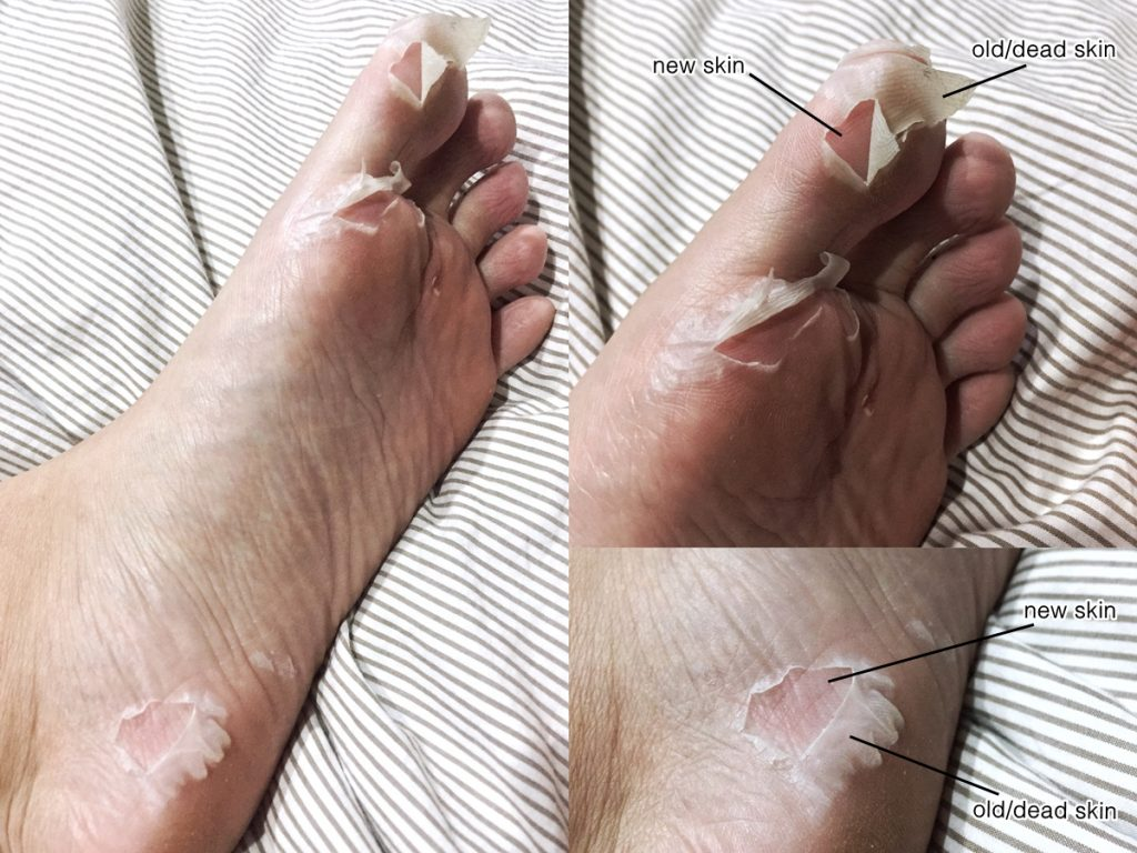 7. Although I expected the peeling to start within 5-7 days as claimed, my feet was noticeably peeling (left sole) by the third day instead. And it's still continuing currently.