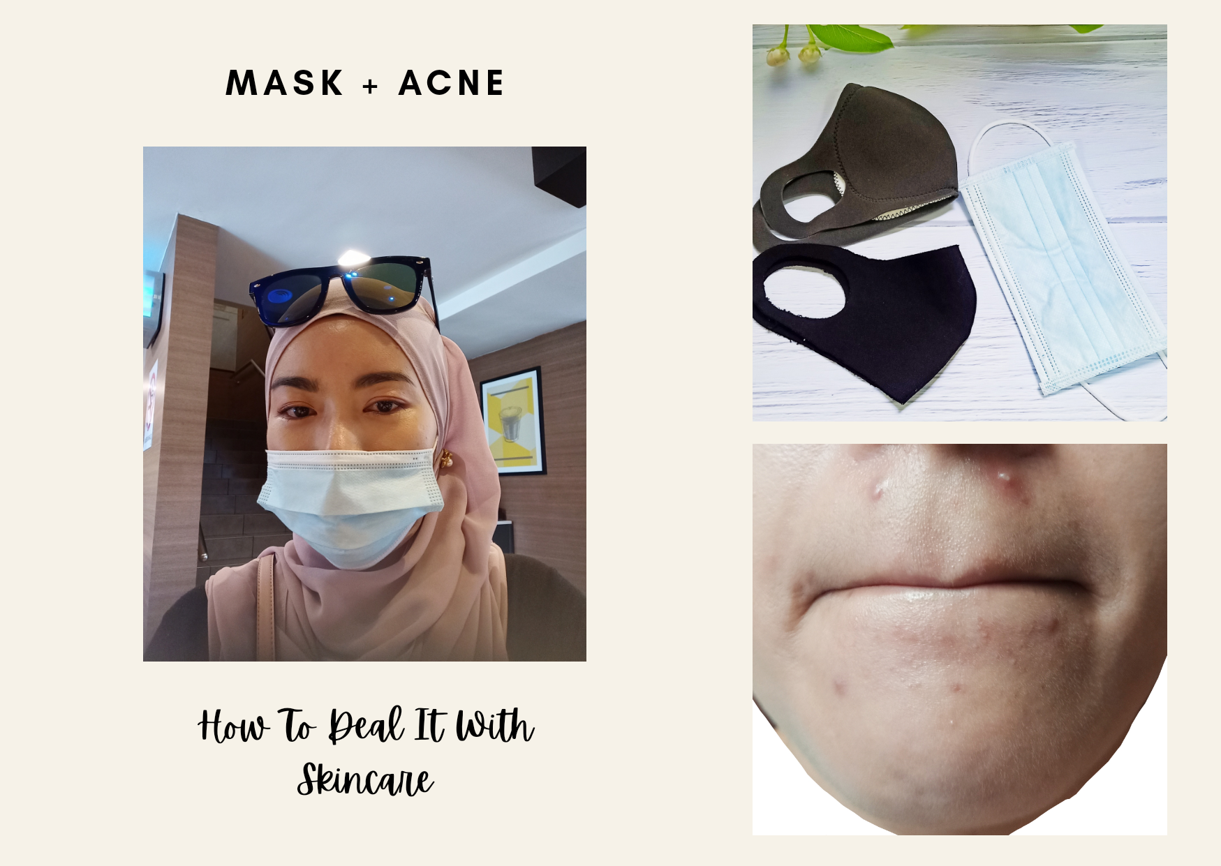 Skincare Tips | How to Deal with Maskne