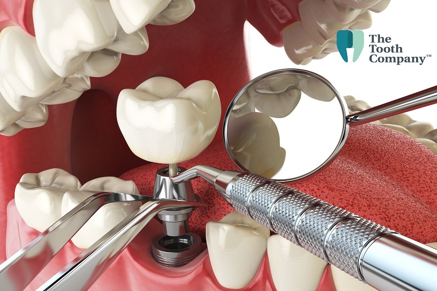 How Are Dental Implants Fixed?
