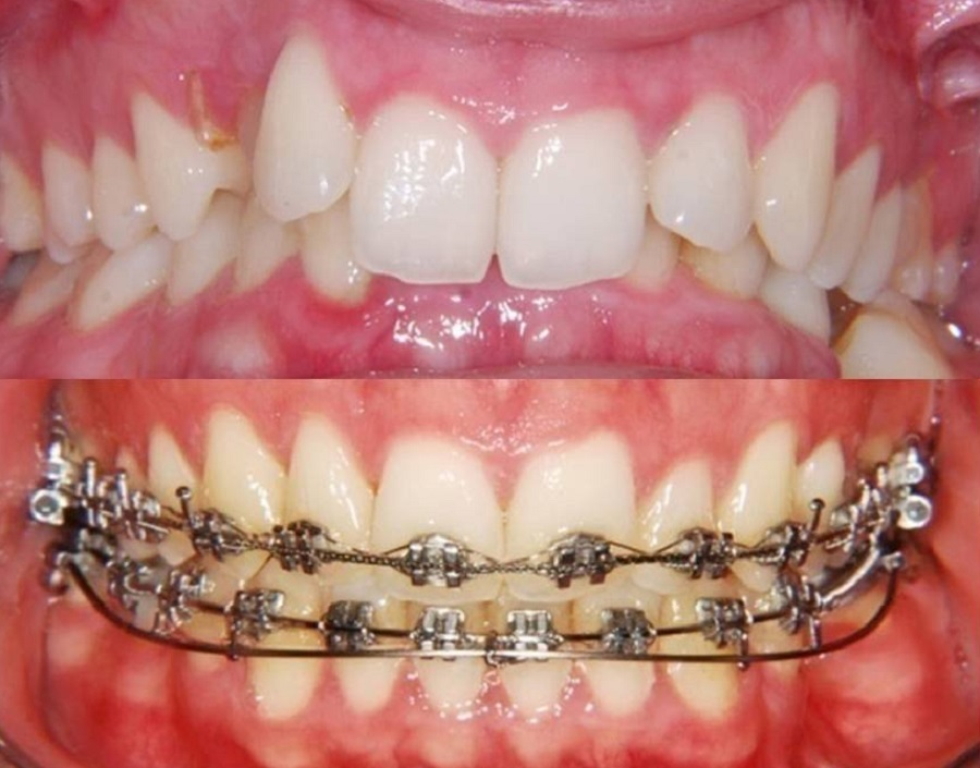 Orthodontic Correction in Karkhana,Orthodontic Correction ...