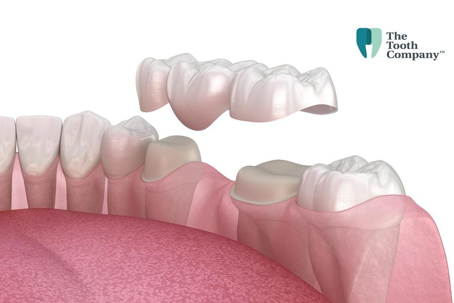 Dental Bridges And Crowns