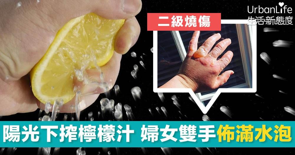 【檸檬惹的禍】陽光下搾檸檬汁 婦女遭二級燒傷 雙手紅腫佈滿水泡