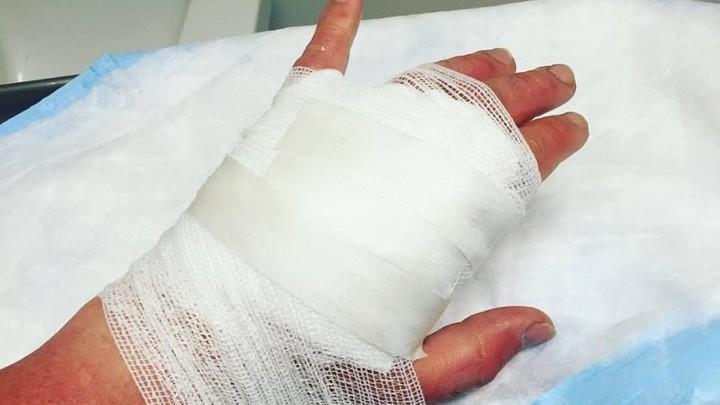 【檸檬惹的禍】陽光下搾檸檬汁 婦女被二級燒傷 雙手紅腫佈滿水泡