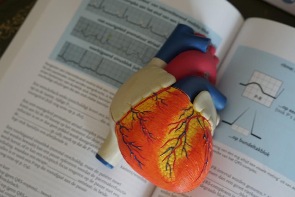 心電圖是指心臟在每個心動週期中,由起搏點、心房、心室相繼興奮,伴隨着心電圖生物電的變化,通過心電描記器從體表引出多種形式的電位變化的圖形。