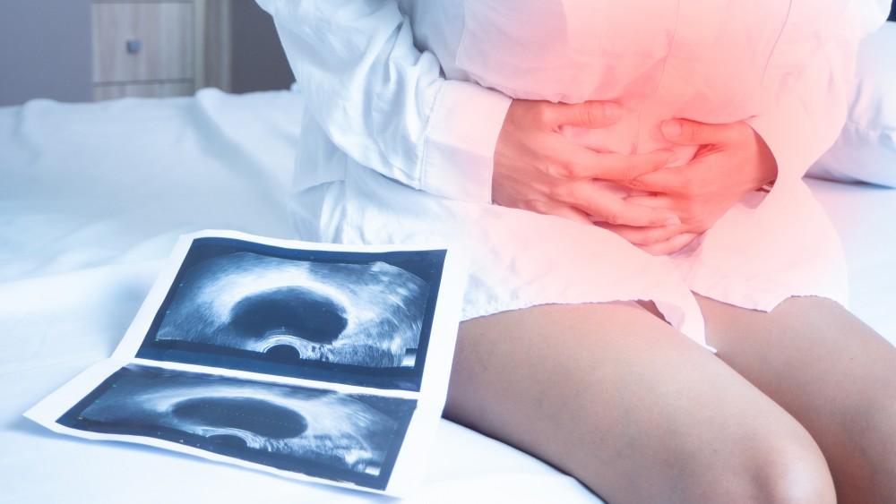 卵巢癌的早期症狀很容易被誤認為是痛經或腸道疾病,通常到了末期才發現,但已經錯過了黃金治療期。