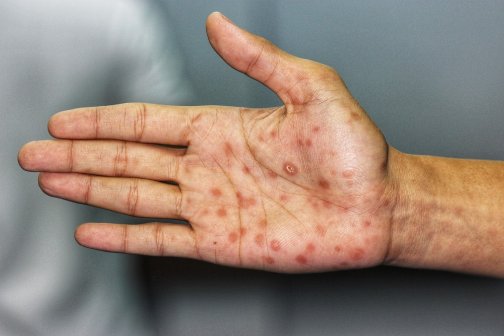 隨後會出現皮疹,常見是全身皮膚隆起紅豆般大小的疹子,全身性淋巴腺腫也是常見症狀之一,腫大之淋巴腺像橡皮一樣硬,沒有痛覺,常見於鼠蹊、頸部、枕部、腋部及上髁部之淋巴腫。
