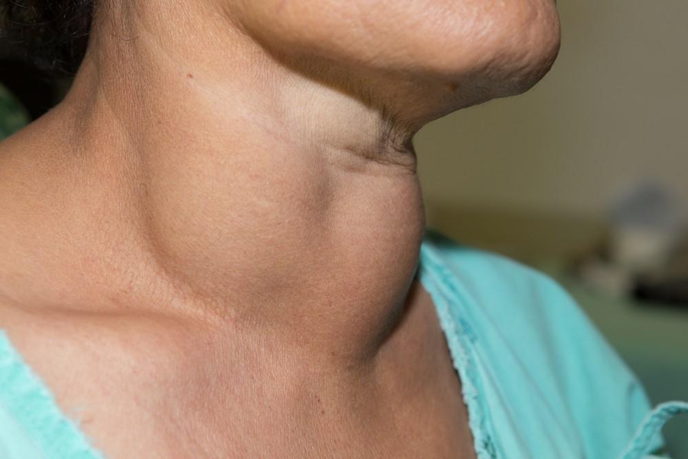 常見的甲狀腺癌徵狀是頸部生出無痛腫塊,然後逐漸長大。