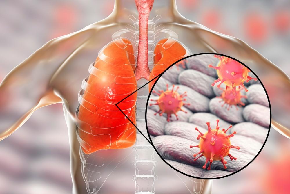沙士是一種病毒性的呼吸系統傳染病,由一種冠狀病毒(SARS-CoV)所引起的。潛伏期一般為二至七日,但可長達大約十日。