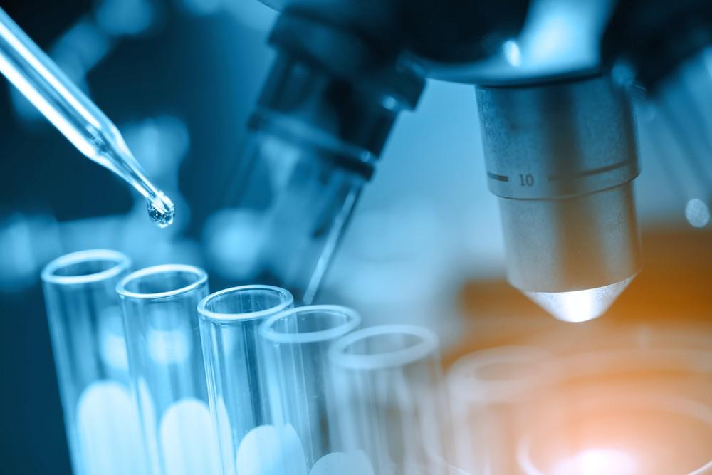 此測試是以人類對冠狀病毒SARS-CoV-2對應的IgM/IgG抗體總量作測量,如IgM抗體為陽性代表最近曾受感染,如對IgG抗體陽性則反映其過往曾經染病。