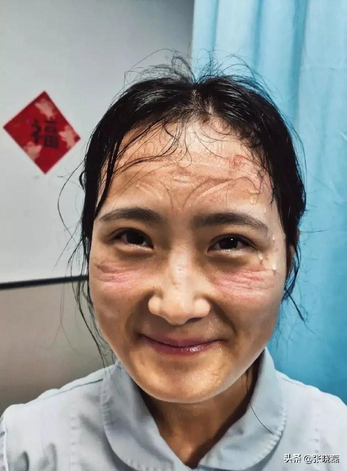 近日微博瘋傳一張女護士滿臉被防護罩勒過痕跡的相片,相中人的臉上雖流著一滴滴的汗水,但仍然保持甜美笑容。