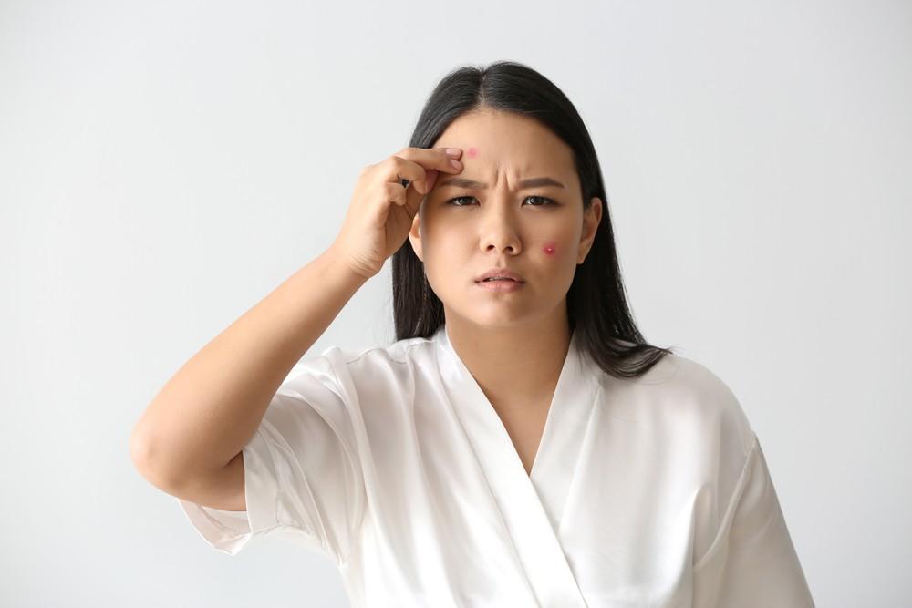 本身容易敏感和和有濕疹人士,在平時和佩戴口罩之前,就要注重保濕護理。