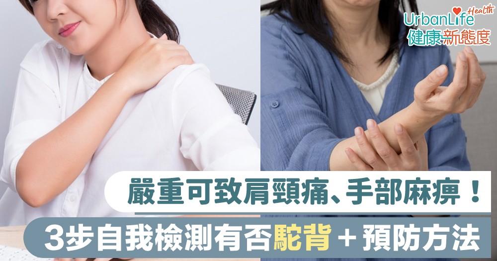 【寒背】嚴重可致肩頸痛、手部麻痹!3個步驟自我檢測有否駝背+預防方法