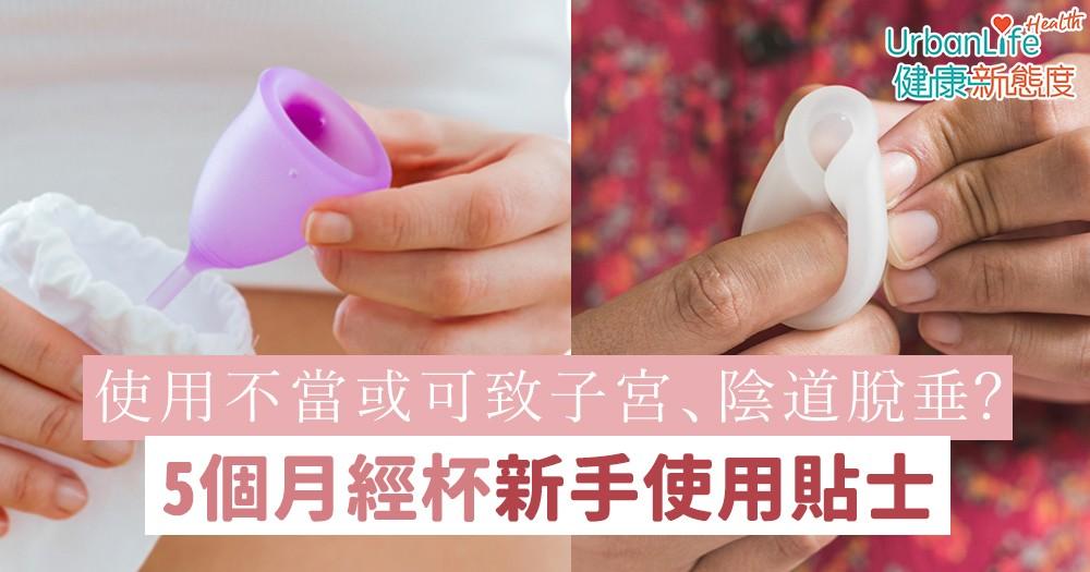 【月經杯用法】使用不當或可致子宮、陰道脫垂?5個月亮杯新手使用貼士