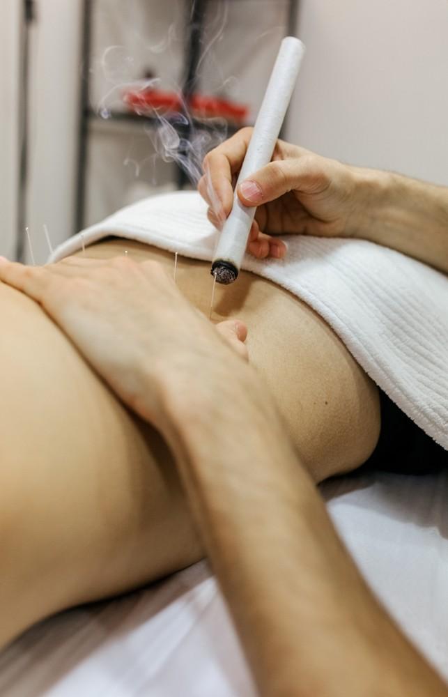 艾灸是中醫流傳已久的一種養生方法,已有2000多年歷史。