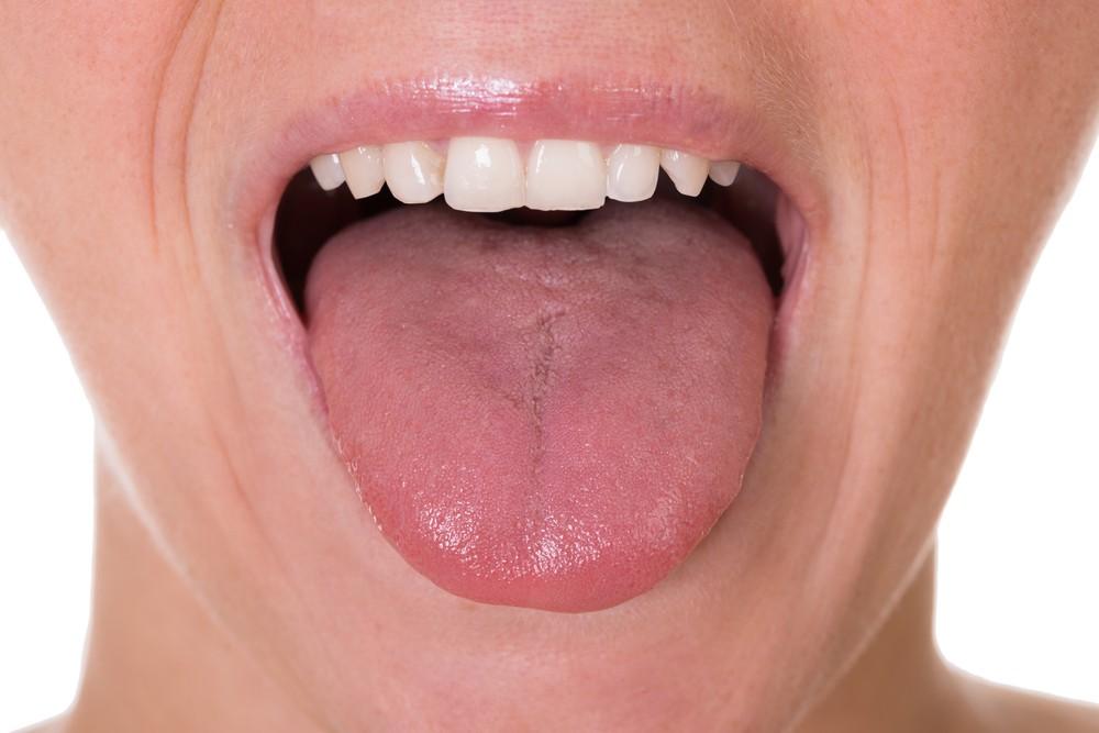 舌苔白膩則是是濕氣重的表現。