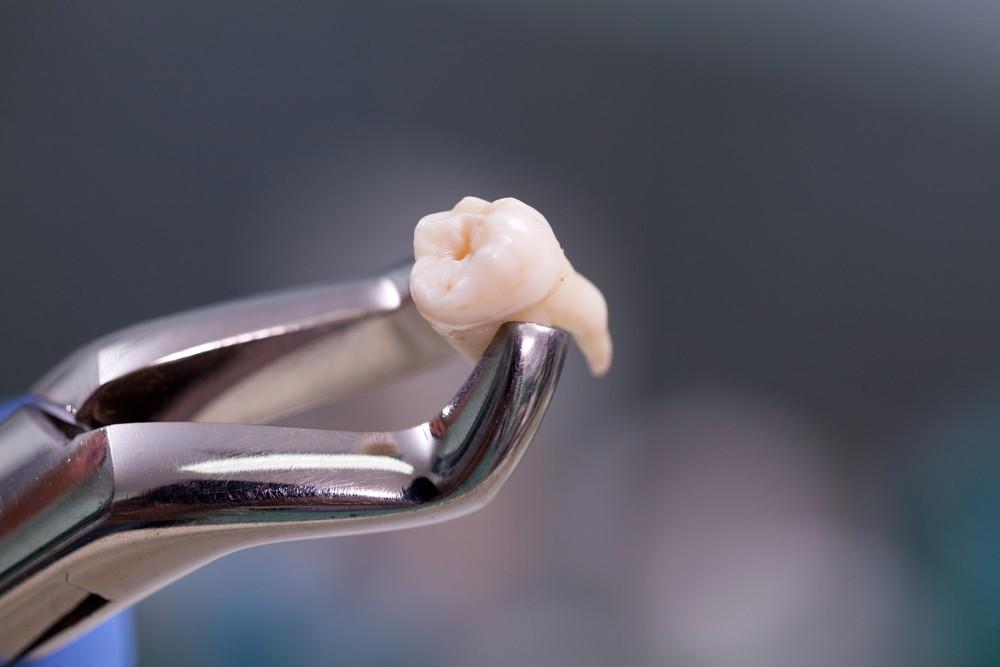 原來蛀牙情況嚴重、嚴重牙周病等,都有機會需要進行拔牙