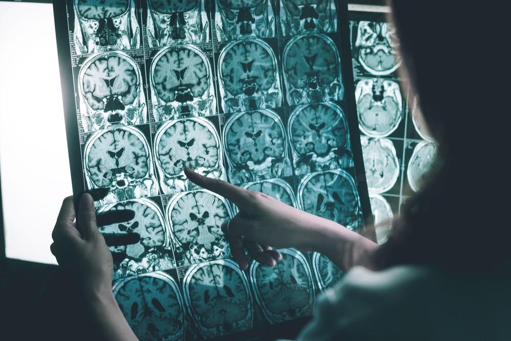 識別阿茲海默症的棘手之處,在於人腦的早期異常,與正常衰老情況相似。
