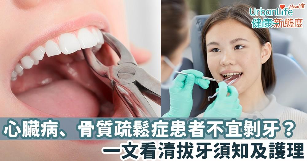 【剝牙】心臟病、骨質疏鬆症患者不宜剝牙?一文看清拔牙須知及護理
