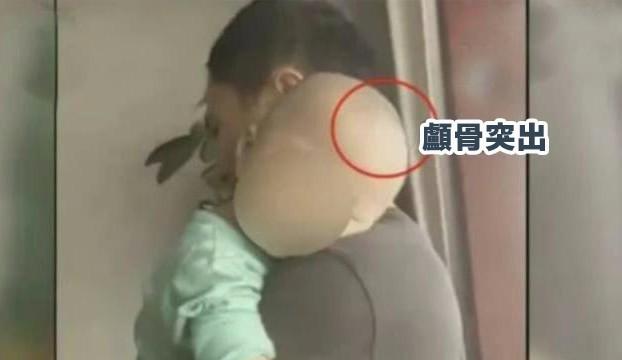 家長發現自己孩子身體出現濕疹、體重嚴重下降、顱骨突出畸形猶如「大頭娃娃」等症狀。