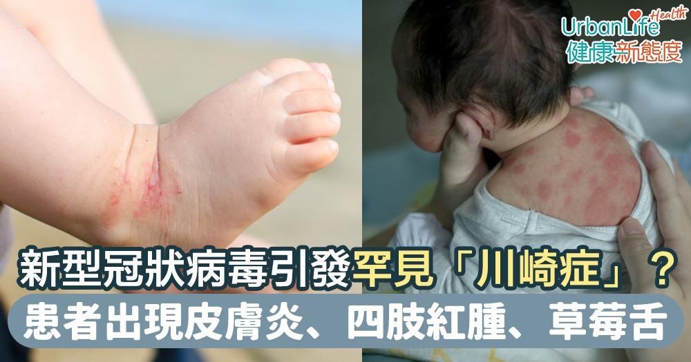 【川崎症症狀】新型冠狀病毒恐引發罕見兒童疾病「川崎症」? 患者出現皮膚炎、四肢紅腫、草莓舌等症狀