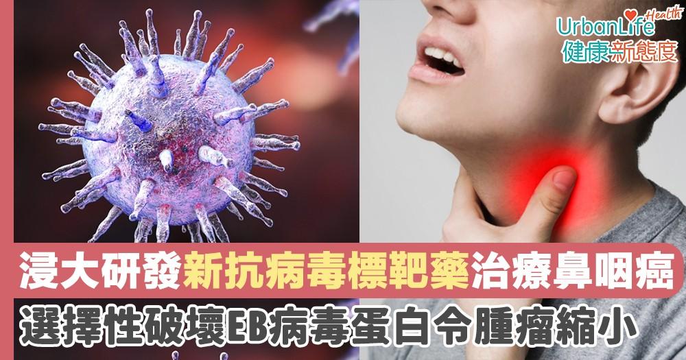 【鼻咽癌新藥】浸大研發新抗病毒標靶藥治療鼻咽癌 選擇性破壞EB病毒蛋白令腫瘤縮小