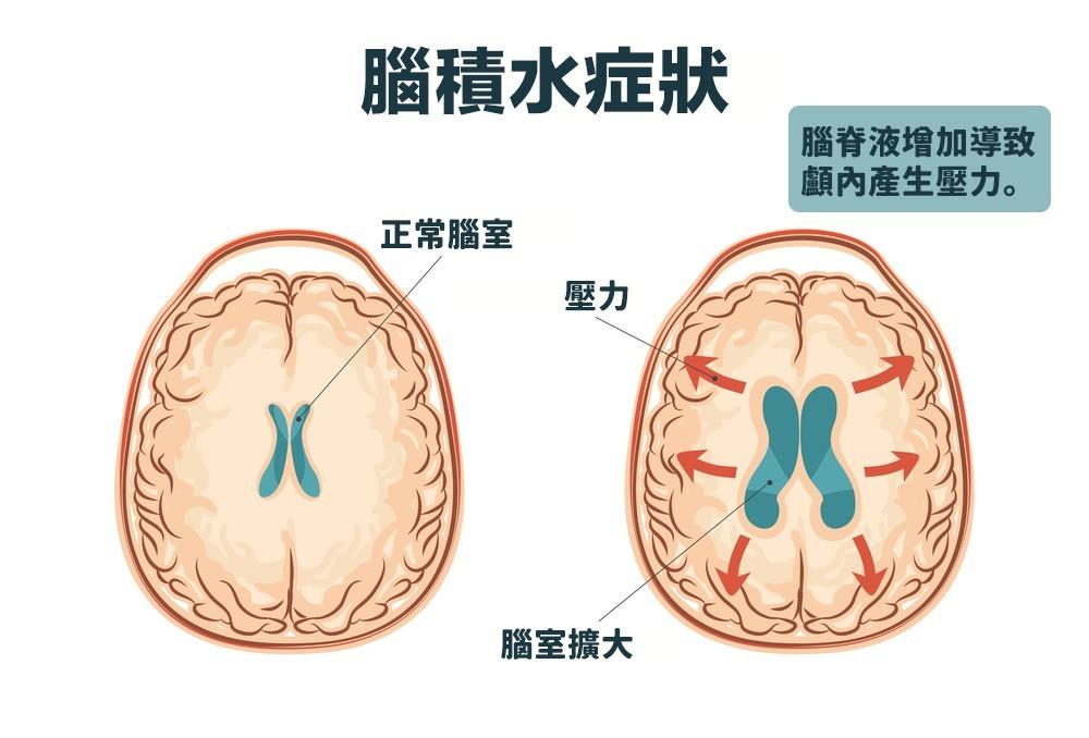 通常是由於包圍著腦部與脊椎的腦脊液異常增加,導致顱內壓力異常增加所致。