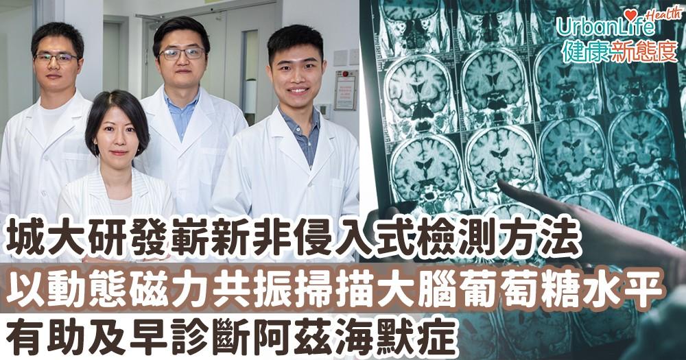 【認知障礙治療】城大研發嶄新非侵入式檢測方法 以動態磁力共振掃描大腦葡萄糖水平 有助及早診斷阿茲海默症