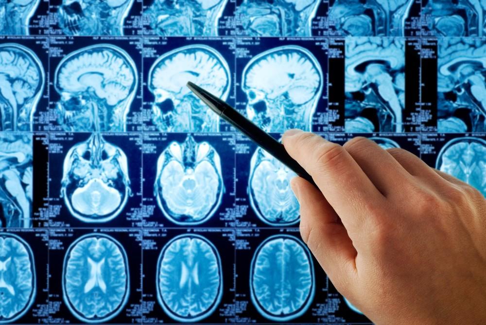腦積水可以通過腦引流手術治療,醫生會按照病人情況控制分流。
