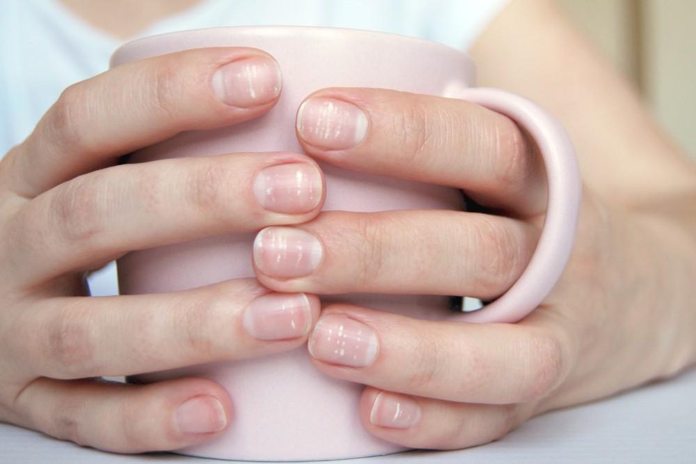 如果缺乏某些礦物質或維生素,指甲上或會出現發現白點或斑點。 最相關的如缺乏鋅、鈣質。