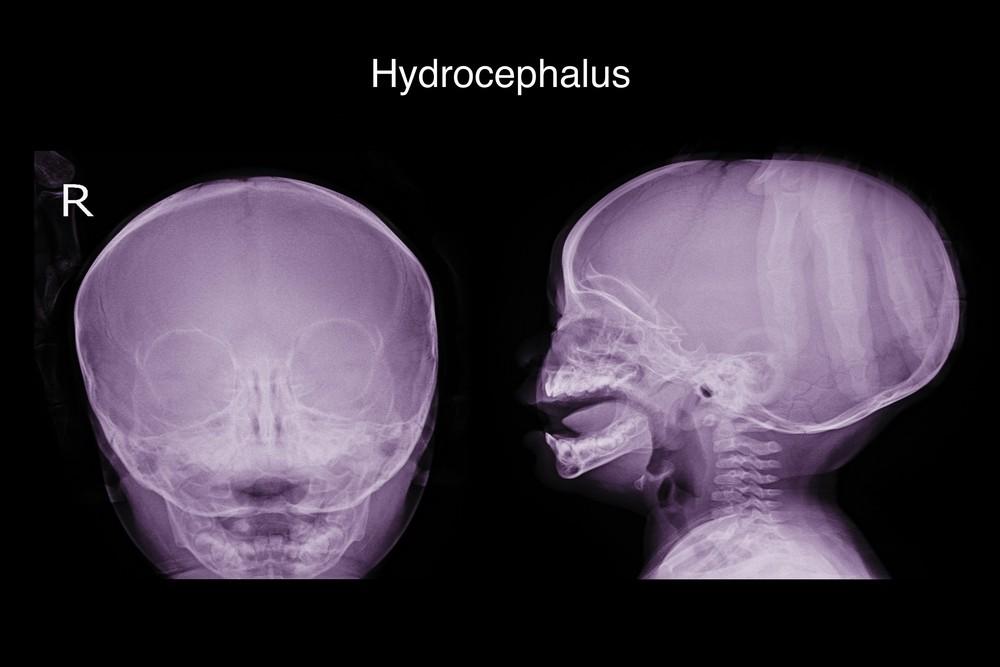 每500名新生兒當中,就可能會有1名患有「大頭症」。
