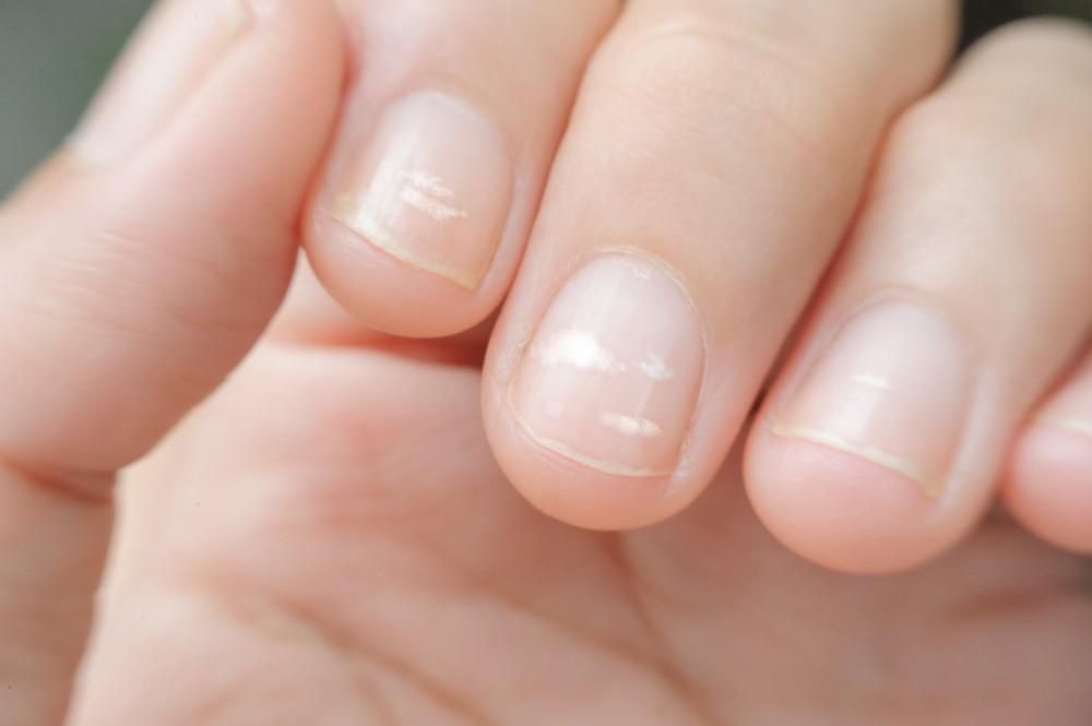 對指甲油,光澤劑,硬化劑或指甲油去除劑過敏,均有可能會導致指甲上出現白斑。