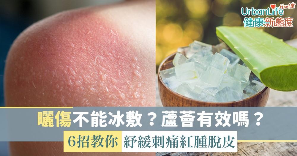 【曬傷急救】曬傷不能冰敷?蘆薈有效嗎?6招教你紓緩刺痛紅腫脫皮